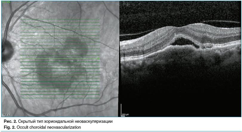 Рис. 2. Скрытый тип хориоидальной неоваскуляризации Fig. 2. Occult choroidal neovascularization