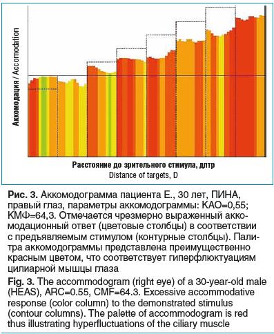 Рис. 3. Аккомодограмма пациента Е., 30 лет, ПИНА, правый глаз, параметры аккомодограммы: КАО=0,55; КМФ=64,3. Отмечается чрезмерно выраженный акко- модационный ответ (цветовые столбцы) в соответствии с предъявляемым стимулом (контурные столбцы). Пали- тра