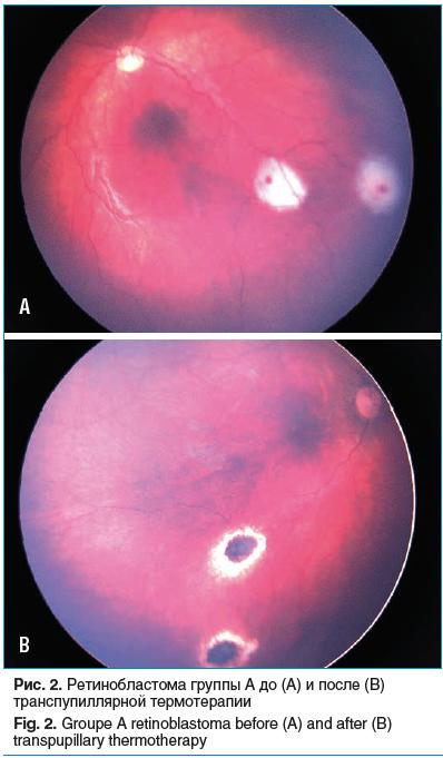 Рис. 2. Ретинобластома группы А до (A) и после (B) транспупиллярной термотерапии Fig. 2. Groupe A retinoblastoma before (A) and after (B) transpupillary thermotherapy