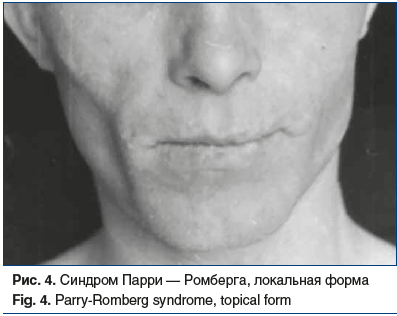 Рис. 4. Синдром Парри — Ромберга, локальная форма Fig. 4. Parry-Romberg syndrome, topical form