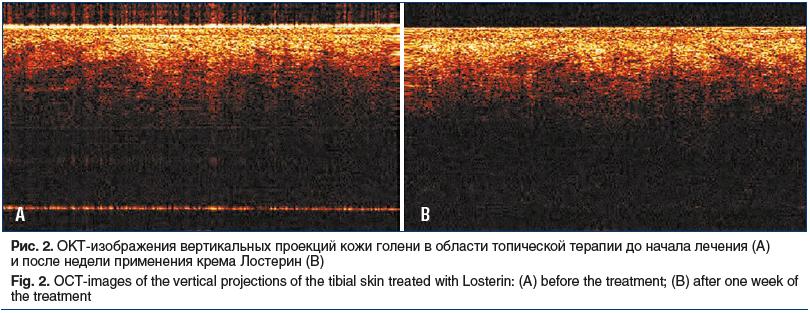 Рис. 2. ОКТ-изображения вертикальных проекций кожи голени в области топической терапии до начала лечения (A) и после недели применения крема Лостерин (B) Fig. 2. OCT-images of the vertical projections of the tibial skin treated with Losterin: (A) before t