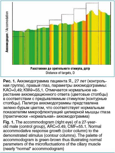 Рис. 1. Аккомодограмма пациента Я., 27 лет (контроль- ная группа), правый глаз, параметры аккомодограммы: КАО=0,49; КМФ=55,1. Отмечается нормальное на- растание аккомодационного ответа (цветовые столбцы) в соответствии с предъявляемым стимулом (контурные