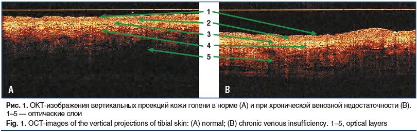 Рис. 1. ОКТ-изображения вертикальных проекций кожи голени в норме (A) и при хронической венозной недостаточности (B). 1–5 — оптические слои Fig. 1. OCT-images of the vertical projections of tibial skin: (A) normal; (B) chronic venous insufficiency. 1–5, o