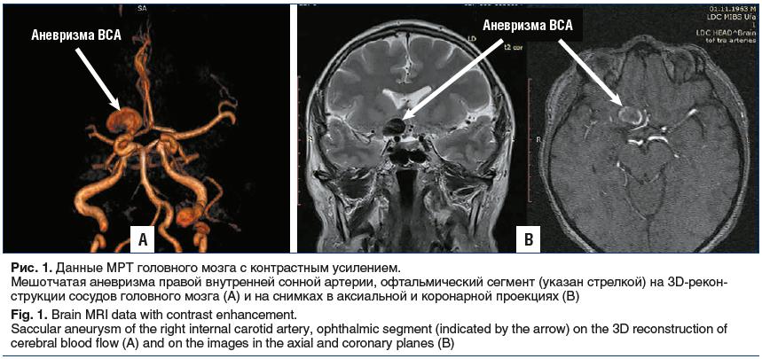 Рис. 1. Данные МРТ головного мозга с контрастным усилением. Мешотчатая аневризма правой внутренней сонной артерии, офтальмический сегмент (указан стрелкой) на 3D-реконструкции сосудов головного мозга (А) и на снимках в аксиальной и коронарной проекциях (В