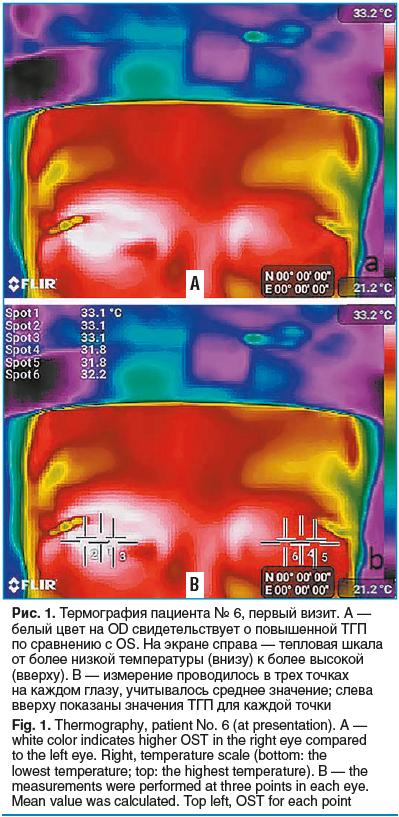 Рис. 1. Термография пациента № 6, первый визит. А — белый цвет на OD свидетельствует о повышенной ТГП по сравнению с OS. На экране справа — тепловая шкала от более низкой температуры (внизу) к более высокой (вверху). B — измерение проводилось в трех точка