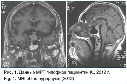 Рис. 1. Данные МРТ гипофиза пациентки К., 2012 г. Fig. 1. MRI of the hypophysis (2012)