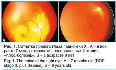 Рис. 1. Сетчатка правого глаза пациентки Х.: А – в воз- расте 7 мес., ретинопатия недоношенных II стадии, «плюс-болезнь»; В – в возрасте 9 лет Fig. 1. The retina of the right eye: A – 7 months old (ROP stage 2, plus disease); B – 9 years old