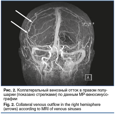 Рис. 2. Коллатеральный венозный отток в правом полу- шарии (показано стрелками) по данным МР-веносинусо- графии Fig. 2. Collateral venous outflow in the right hemisphere (arrows) according to MRI of venous sinuses