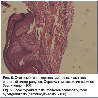 Рис. 5. Очаговый гиперкератоз, умеренный акантоз, очаговый гипергранулез. Окраска гематоксилин-эозином. Увеличение: ×100 Fig. 5. Focal hyperkeratosis, moderate acanthosis, focal hypergranulosis (hematoxylin-eosin, ×100)