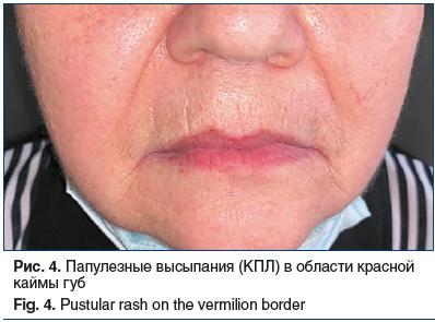 Рис. 4. Папулезные высыпания (КПЛ) в области красной каймы губ Fig. 4. Pustular rash on the vermilion border