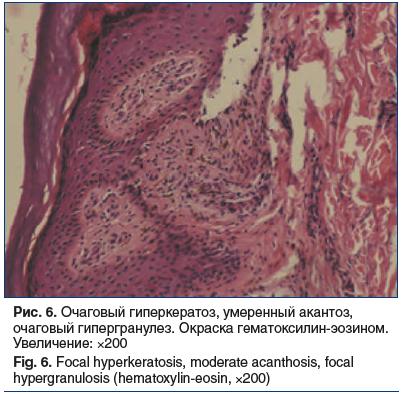 Рис. 6. Очаговый гиперкератоз, умеренный акантоз, очаговый гипергранулез. Окраска гематоксилин-эозином. Увеличение: ×200 Fig. 6. Focal hyperkeratosis, moderate acanthosis, focal hypergranulosis (hematoxylin-eosin, ×200)