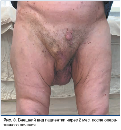 Рис. 3. Внешний вид пациентки через 2 мес. после оперативного лечения
