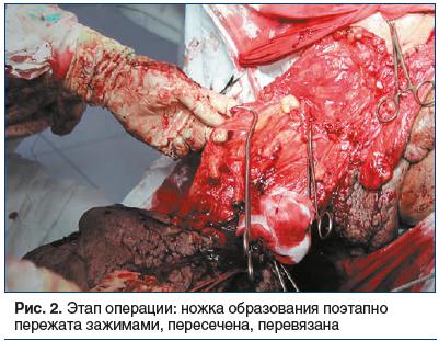 Рис. 2. Этап операции: ножка образования поэтапно пережата зажимами, пересечена, перевязана