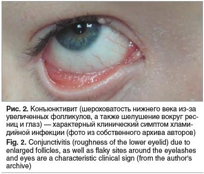 Рис. 2. Конъюнктивит (шероховатость нижнего века из-за увеличенных фолликулов, а также шелушение вокруг рес- ниц и глаз) — характерный клинический симптом хлами- дийной инфекции (фото из собственного архива авторов) Fig. 2. Conjunctivitis (roughness of th