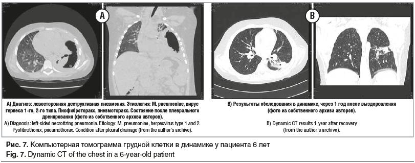 Рис. 7. Компьютерная томограмма грудной клетки в динамике у пациента 6 лет Fig. 7. Dynamic CT of the chest in a 6-year-old patient