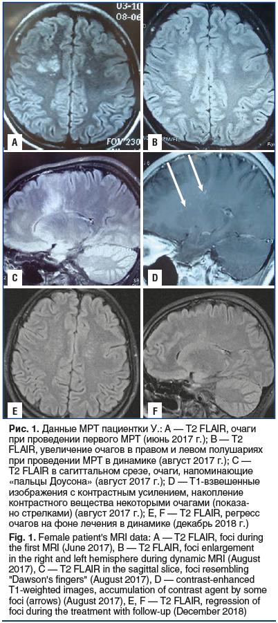 Рис. 1. Данные МРТ пациентки У.: А — T2 FLAIR, очаги при проведении первого МРТ (июнь 2017 г.); B — T2 FLAIR, увеличение очагов в правом и левом полушариях при проведении МРТ в динамике (август 2017 г.); C — T2 FLAIR в сагиттальном срезе, очаги, напоминаю