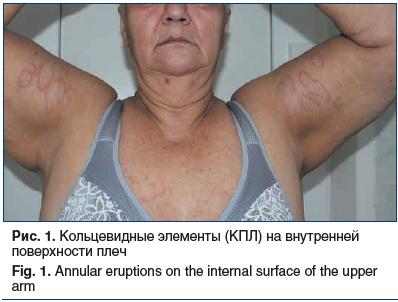 Рис. 1. Кольцевидные элементы (КПЛ) на внутренней поверхности плеч Fig. 1. Annular eruptions on the internal surface of the upper arm