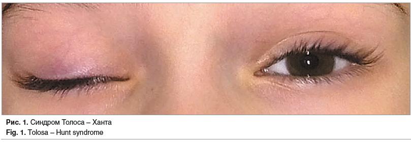 Рис. 1. Синдром Толоса – Ханта Fig. 1. Tolosa – Hunt syndrome