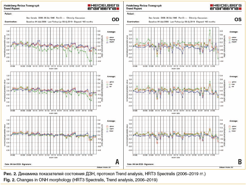 Рис. 2. Динамика показателей состояния ДЗН, протокол Trend analysis, HRT3 Spectralis (2006–2019 гг.) Fig. 2. Changes in ONH morphology (HRT3 Spectralis, Trend analysis, 2006–2019)