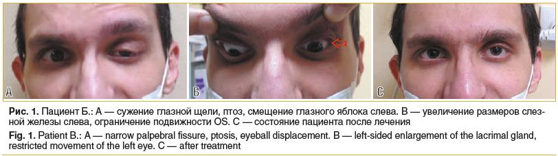 Рис. 1. Пациент Б.: А — сужение глазной щели, птоз, смещение глазного яблока слева. В — увеличение размеров слез- ной железы слева, ограничение подвижности OS. С — состояние пациента после лечения Fig. 1. Patient B.: A — narrow palpebral fissure, ptosis,