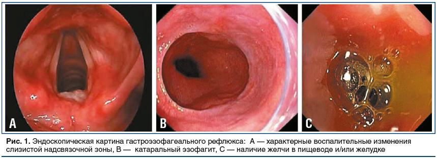 Рис. 1. Эндоскопическая картина гастроэзофагеального рефлюкса: А — характерные воспалительные изменения слизистой надсвязочной зоны, В — катаральный эзофагит, С — наличие желчи в пищеводе и/или желудке