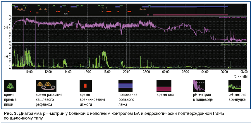Рис. 3. Диаграмма рН-метрии у больной с неполным контролем БА и эндоскопически подтвержденной ГЭРБ по щелочному типу