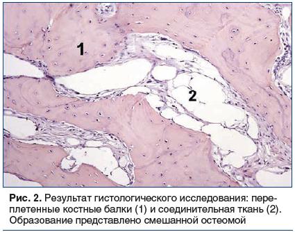 Рис. 2. Результат гистологического исследования: переплетенные костные балки (1) и соединительная ткань (2). Образование представлено смешанной остеомой