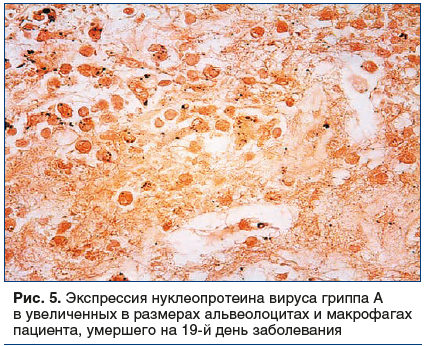 Рис. 5. Экспрессия нуклеопротеина вируса гриппа А в увеличенных в размерах альвеолоцитах и макрофагах пациента, умершего на 19-й день заболевания