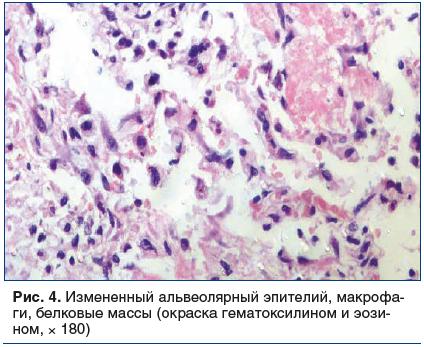 Рис. 4. Измененный альвеолярный эпителий, макрофаги, белковые массы (окраска гематоксилином и эозином, × 180)