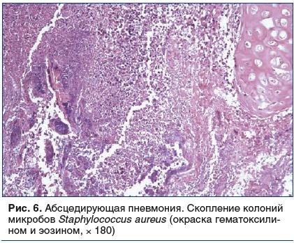 Рис. 6. Абсцедирующая пневмония. Скопление колоний микробов Staphylococcus aureus (окраска гематоксилином и эозином, × 180)