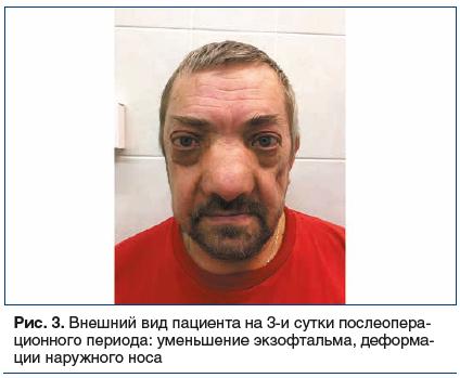 Рис. 3. Внешний вид пациента на 3-и сутки послеопера- ционного периода: уменьшение экзофтальма, деформации наружного носа