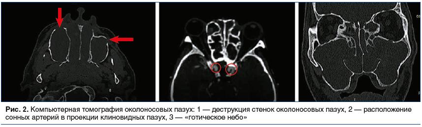 Рис. 2. Компьютерная томография околоносовых пазух: 1 — деструкция стенок околоносовых пазух, 2 — расположение сонных артерий в проекции клиновидных пазух, 3 — «готическое небо»