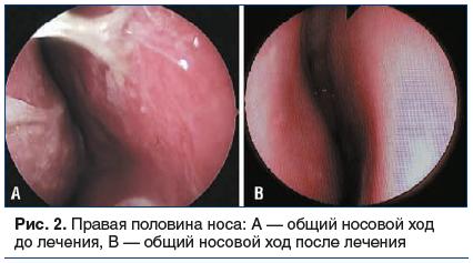 Рис. 2. Правая половина носа: А — общий носовой ход до лечения, В — общий носовой ход после лечения