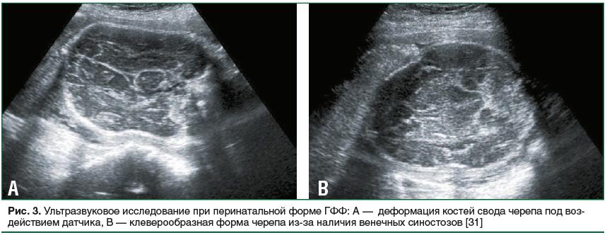 Рис. 3. Ультразвуковое исследование при перинатальной форме ГФФ: А — деформация костей свода черепа под воздействием датчика, В — клеверообразная форма черепа из-за наличия венечных синостозов [31]