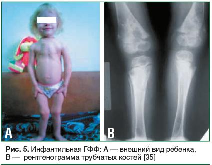 Рис. 5. Инфантильная ГФФ: А — внешний вид ребенка, В — рентгенограмма трубчатых костей [35]