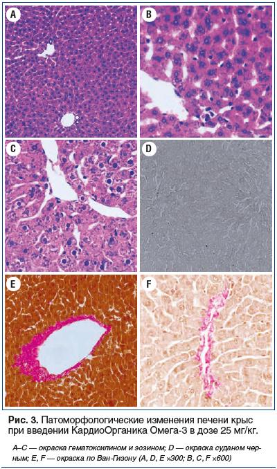 Рис. 3. Патоморфологические изменения печени крыс при введении КардиоОрганика Омега-3 в дозе 25 мг/кг.