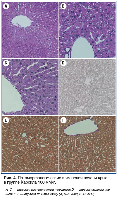 Рис. 4. Патоморфологические изменения печени крыс в группе Карсила 100 мг/кг.