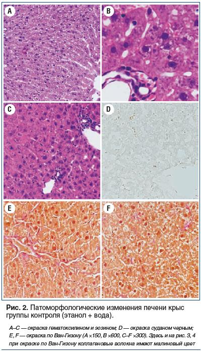 Рис. 2. Патоморфологические изменения печени крыс группы контроля (этанол + вода).