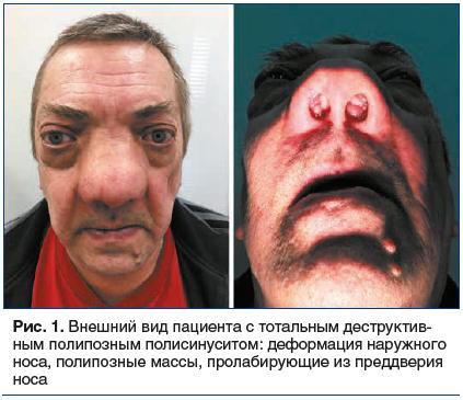 Рис. 1. Внешний вид пациента с тотальным деструктив- ным полипозным полисинуситом: деформация наружного носа, полипозные массы, пролабирующие из преддверия носа