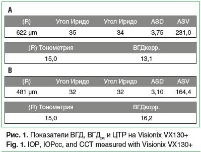 Рис. 1. Показатели ВГД, ВГДрк и ЦТР на Visionix VX130+ Fig. 1. IOP, IOPcc, and CCT measured with Visionix VX130+