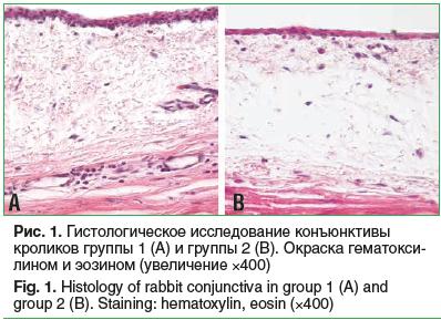 Рис. 1. Гистологическое исследование конъюнктивы кроликов группы 1 (А) и группы 2 (В). Окраска гематокси- лином и эозином (увеличение ×400) Fig. 1. Histology of rabbit conjunctiva in group 1 (A) and group 2 (B). Staining: hematoxylin, eosin (×400)
