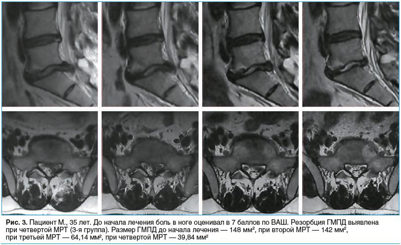Рис. 3. Пациент М., 35 лет. До начала лечения боль в ноге оценивал в 7 баллов по ВАШ. Резорбция ГМПД выявлена при четвертой МРТ (3-я группа). Размер ГМПД до начала лечения — 148 мм2, при второй МРТ — 142 мм2, при третьей МРТ — 64,14 мм2, при четвертой МРТ