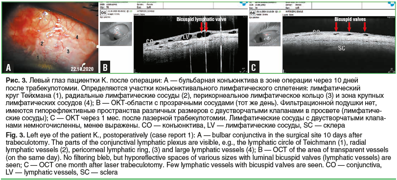 Рис. 3. Левый глаз пациентки К. после операции: А — бульбарная конъюнктива в зоне операции через 10 дней после трабекулотомии. Определяются участки конъюнктивального лимфатического сплетения: лимфатический круг Тейхмана (1), радиальные лимфатические сосуд