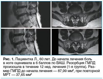 Рис. 1. Пациентка Л., 60 лет. До начала лечения боль в ноге оценивала в 6 баллов по ВАШ. Резорбция ГМПД произошла в течение 12 нед. лечения (1-я группа). Раз- мер ГМПД до начала лечения — 87,99 мм2, при повторной МРТ — 37,65 мм2