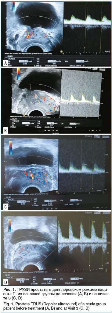 Рис. 1. ТРУЗИ простаты в допплеровском режиме пациента П. из основной группы до лечения (А, В) и на визите 3 (С, D) Fig. 1. Prostate TRUS (Doppler ultrasound) of a study group patient before treatment (A, B) and at Visit 3 (C, D)
