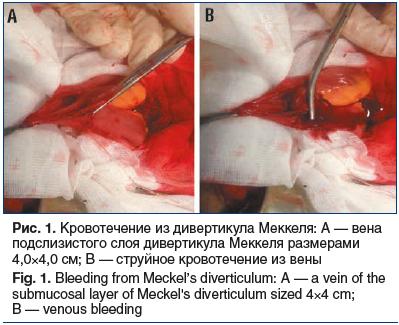 Рис. 1. Кровотечение из дивертикула Меккеля: А — вена подслизистого слоя дивертикула Меккеля размерами 4,0×4,0 см; В — струйное кровотечение из вены Fig. 1. Bleeding from Meckel's diverticulum: A — a vein of the submucosal layer of Meckel's diverticulum s