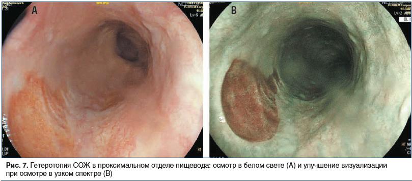 Рис. 7. Гетеротопия СОЖ в проксимальном отделе пищевода: осмотр в белом свете (А) и улучшение визуализации при осмотре в узком спектре (B)