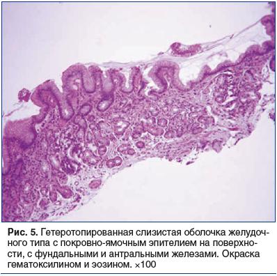 Рис. 5. Гетеротопированная слизистая оболочка желудоч- ного типа с покровно-ямочным эпителием на поверхности, с фундальными и антральными железами. Окраска гематоксилином и эозином. ×100