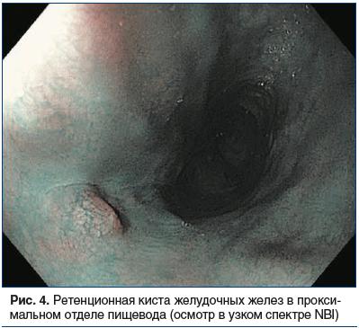 Рис. 4. Ретенционная киста желудочных желез в проксимальном отделе пищевода (осмотр в узком спектре NBI)
