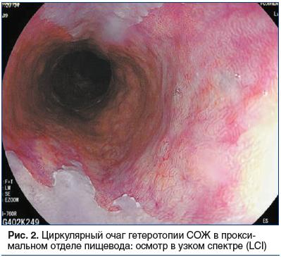 Рис. 2. Циркулярный очаг гетеротопии СОЖ в проксимальном отделе пищевода: осмотр в узком спектре (LCI)